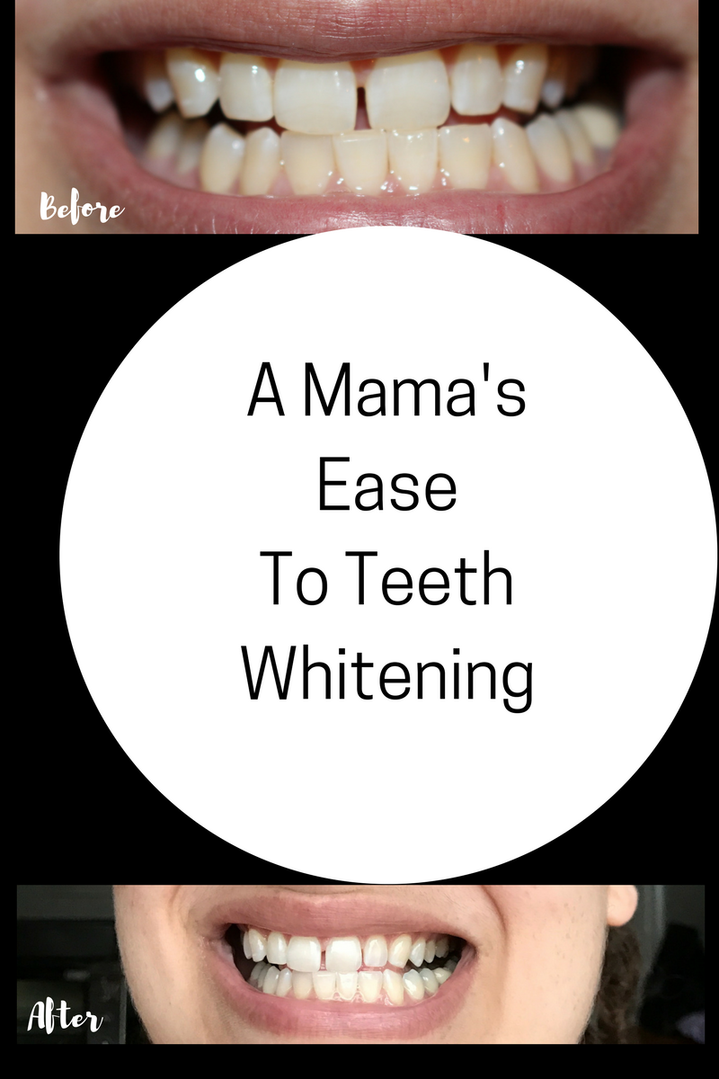 A Mama's Guide To Whitening + A Giveaway